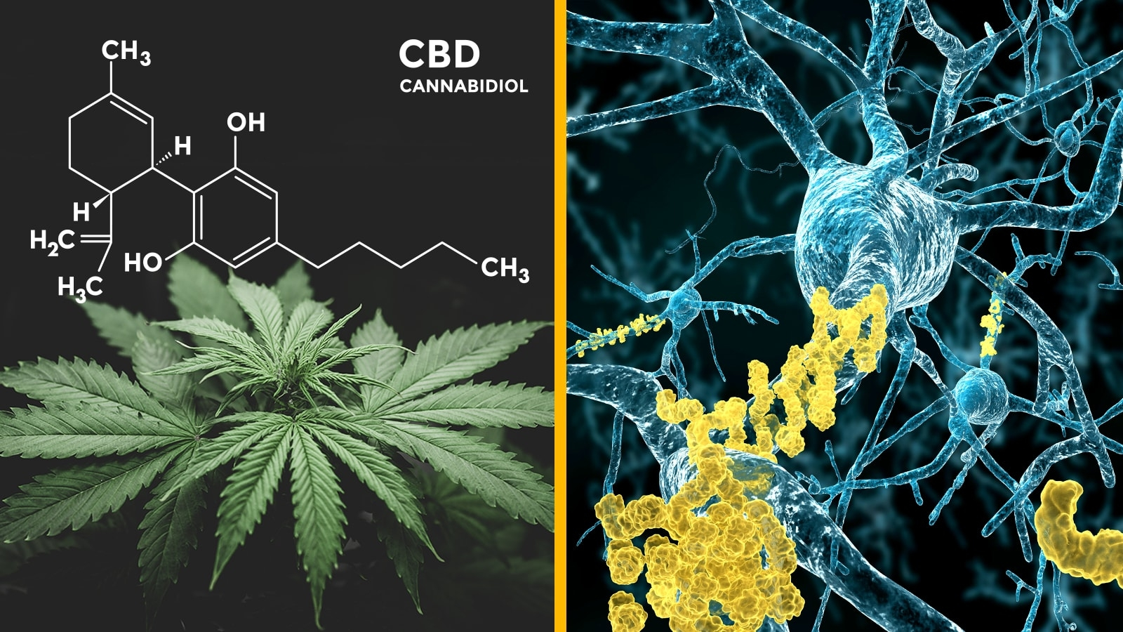 Marijuana for Alzheimer's disease